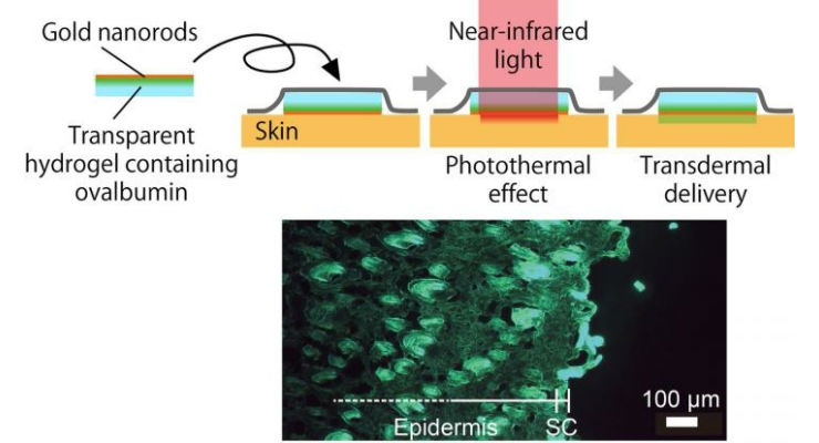 Near-infrared light produces a photothermal effect on gold nanorods in a hydrogel skin patch. This heats the skin thereby increasing the permeability of the outermost layer, the stratum corneum (SC), which allows significant transdermal delivery of fluorescently labeled ovalbumin. The goal of this research is the effective delivery of protein-based drugs through the skin. Image courtesy of Professor Takuro Niidome.