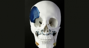 3D Printing Is Revolutionizing Facial Reconstructive Surgery