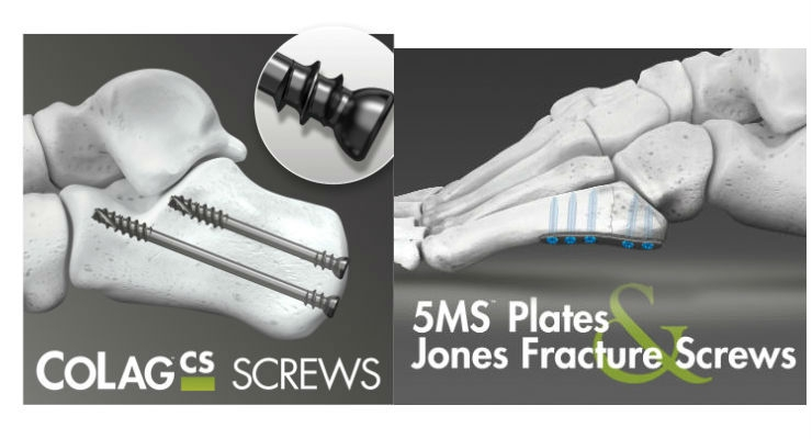 CoLag Locking Compression Screw System (right); 5MS Fracture Repair System (left). Images courtesy of Business Wire.