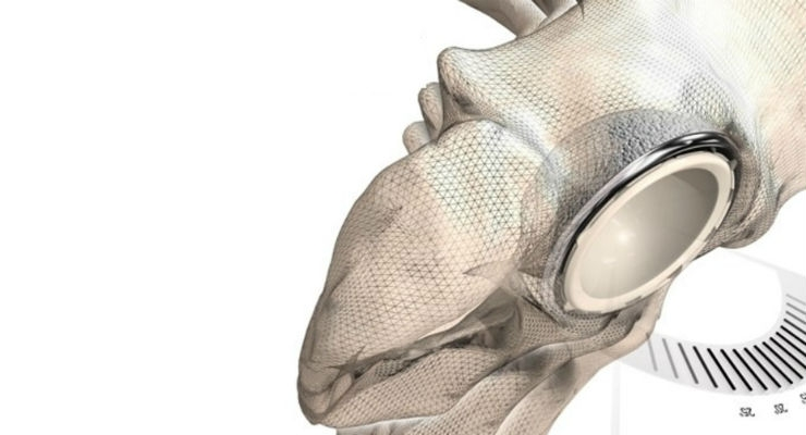 The Corin Group's Optimized Positioning System technology uses image-based modeling techniques through Simpleware software to solve key challenges in patient-specific simulation and hip replacements.