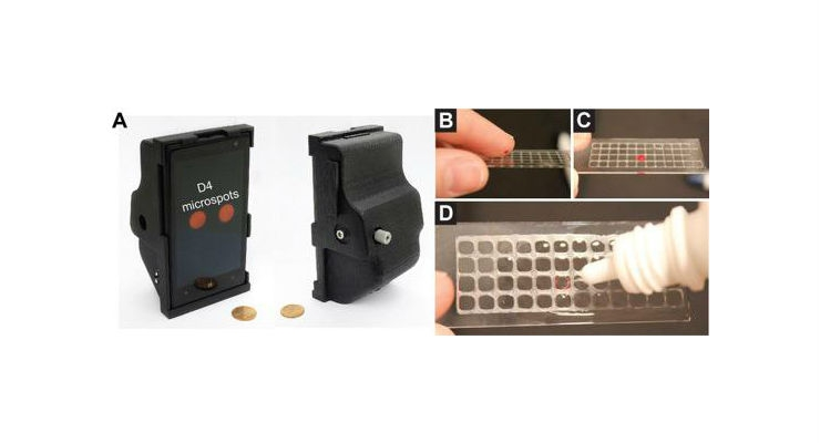 The photo on the left shows the 3D printed smartphone attachment that uses the phone