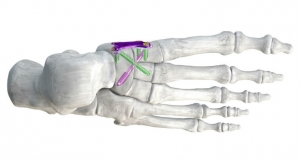 Paragon 28 Launches Plating and Guided Screw System for Arthritis and Flatfoot