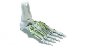 Rising Stars: Emerging Orthopedic Device Companies