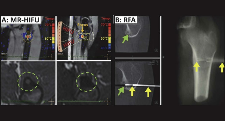 Incisionless Surgery with MR-HIFU Effective in Destroying Painful Bone Tumors