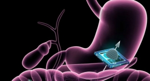 New Microchip Technology Could Be Used to Track