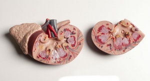 New AI Tech Significantly Boosts Kidney Analysis