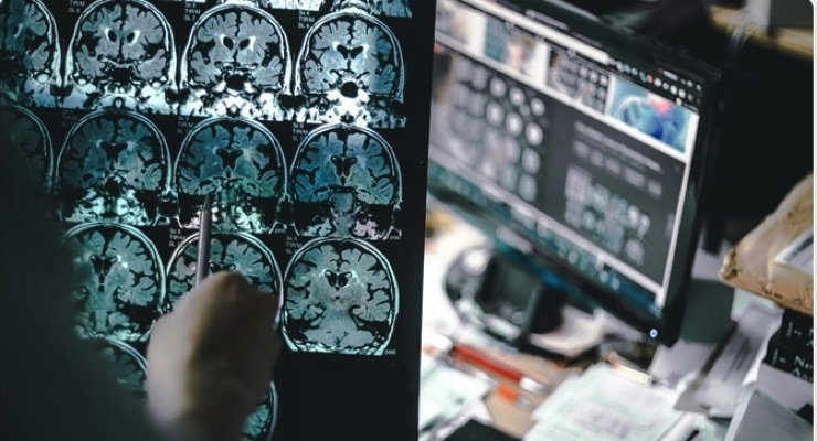 Intec Pharma Partners with LTS for Parkinson