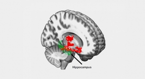 NIH Study Links Lack of Sleep Alzheimer's Risk