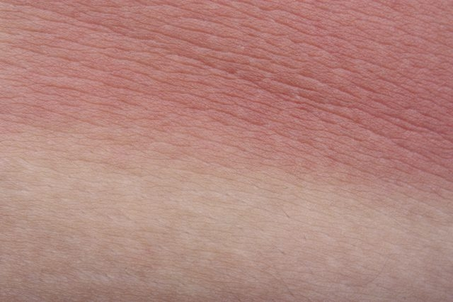 Inflammation Resolution During Skin Aging