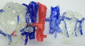Please Touch: 3D Printed Anatomy Can Make Surgery a Hands-On Experience for Everyone