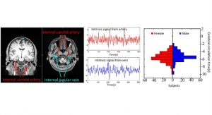 Imaging Tech Detects Cerebral Vascular Disorders and Injuries Without a Contrast Agent