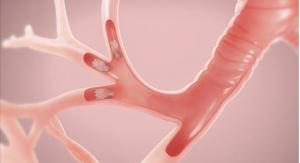 FDA Approves Zephyr Endobronchial Valve for Treating Severe Emphysema