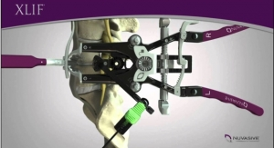 NuVasive Enrolls First Patients in Study Evaluating Advanced Spinal Implants Used in XLIF Procedures