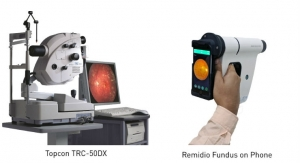 Smartphone-Based Retinal Camera Outperforms Tabletop System in Detecting Diabetic Retinopathy