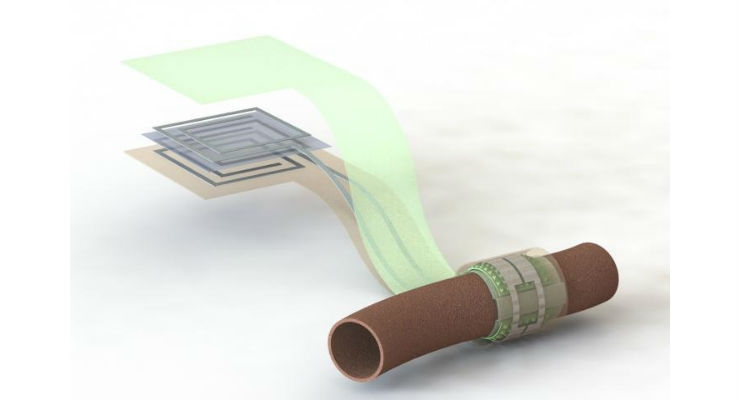 A Wireless, Battery-Free, Biodegradable Blood Flow Sensor