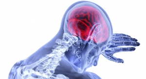 FDA Clears RAPID Imaging Platform to Select Acute Stroke Patients for Clot Removal