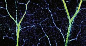 New Tech Offers Unprecedented Look Inside Capillaries
