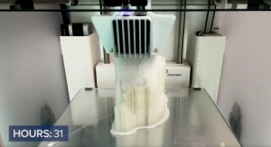 3D Printers Produce Models that Enhance a Surgeon