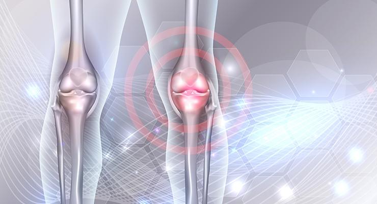 ParActin Decreases Pain and Discomfort of Knee Osteoarthritis