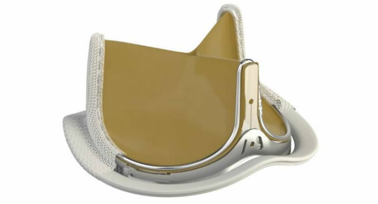Edwards' Aortic Valves Perform Favorably in Trial