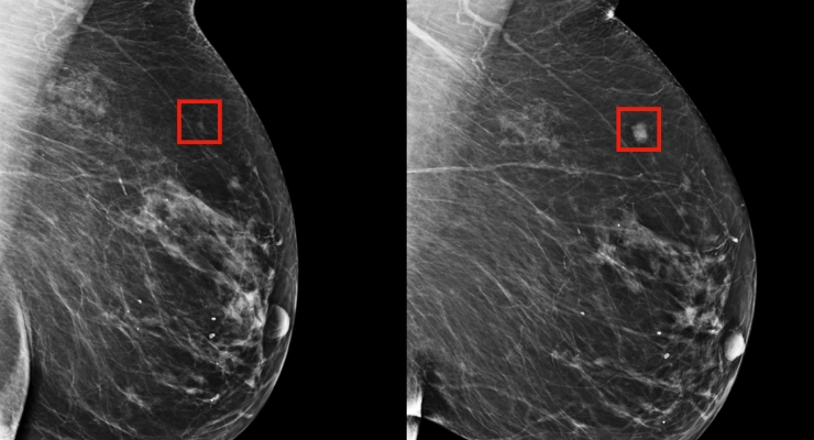 Using AI to Predict Breast Cancer and Personalize Care