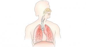 Owlstone Makes Advancements in Breath Biopsy Platform