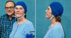 Alzheimer's Memory Loss Reversed by New Head Device