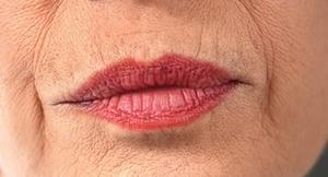 Mary Kay Patents Wrinkle Treatment