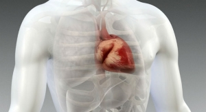 Global Cardiac Implant Market Expected to Exceed $83.7 Billion in Six Years