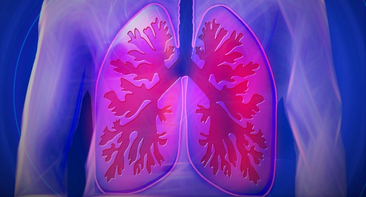 Easy Breezy: IoT Guarding Lung Health