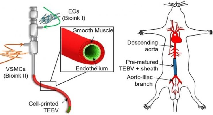 3D Printing, Bioinks Create Implantable Blood Vessels