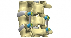 Five Reasons for the Small World of Orthopedic Product Development