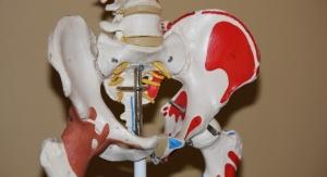 Surgeon Develops Algorithm to Predict Arthroscopic Hip Surgery Outcomes