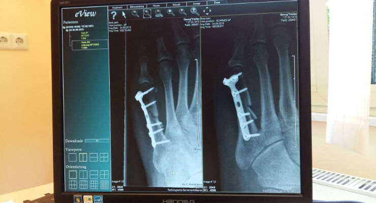 Flat Panel Medical X-Ray Detectors Outperforming Analog Counterparts