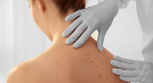 Some Good News About Melanoma