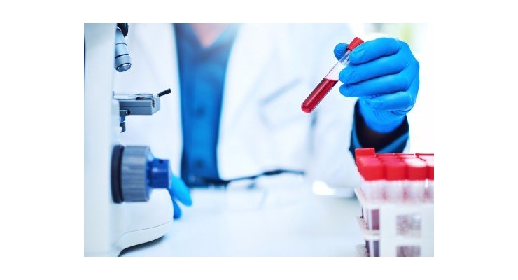Blood Test May Help Doctors Catch Pancreatic Cancer Early
