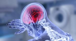 New Design Principle Could Prevent Brain Shunt Catheter Failure