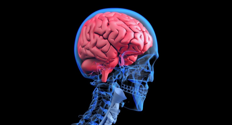 Thin-Film Electrodes for Brain Surgery Reach the Market