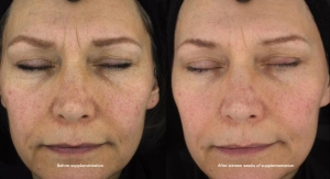 Trial on Carotenoid Extract Focuses on Visible Beauty Parameters