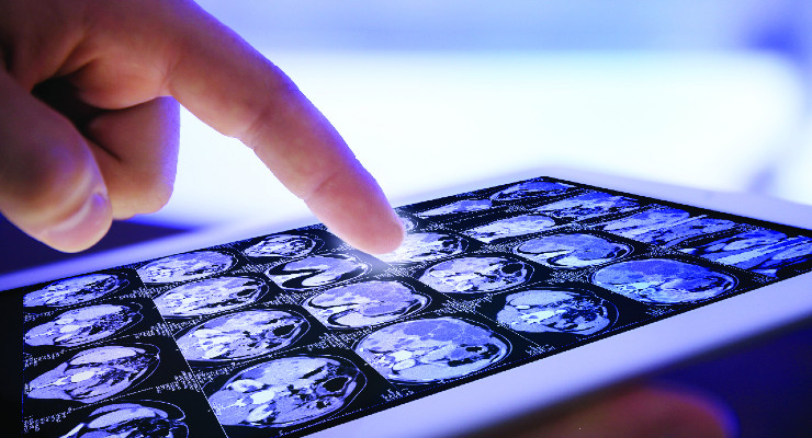 The Rise of Digital Medical Devices and Implications for the Supply Chain