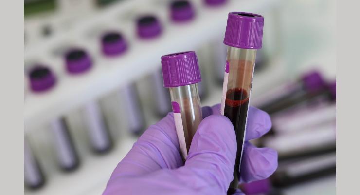 Adma Biologics Launches COVID-19 Assay