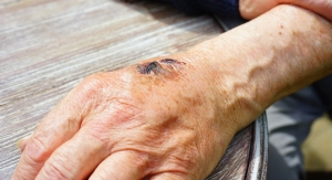 NIH Grant for a PoC Device to Treat Chronic Wounds