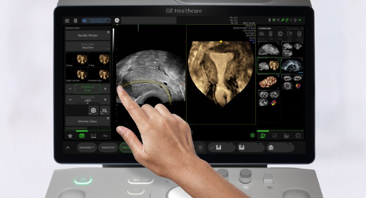 GE Healthcare Unveils Voluson SWIFT AI-Enhanced Women's Health Ultrasound