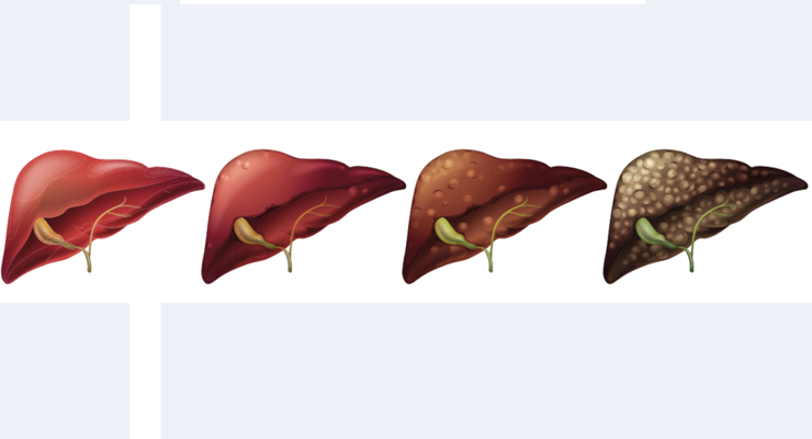 Omega-3s Associated with Better Liver Functioning In NAFLD Patients
