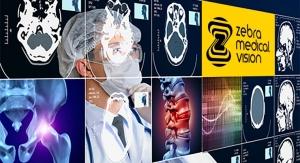 FDA OKs Zebra Medical Vision