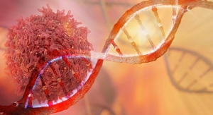 Obesity Shown to Heighten Cancer Risk by Impairing Immune Function