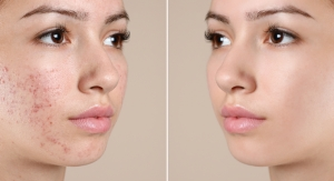 Amyris Shares Clinical Results for Clean Acne Treatment