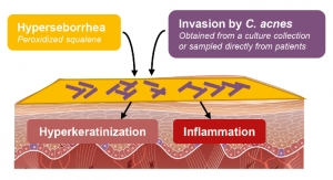 Silab Develops Model of Reconstructed Epidermis