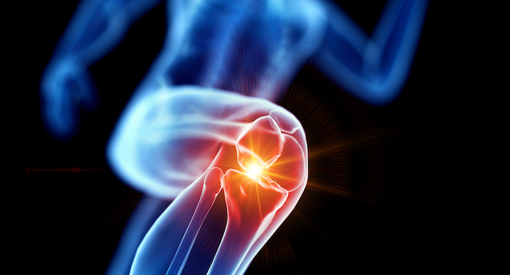 Preliminary Research Suggests Osteoarthritis Benefits for Herbal Formula JointAlive