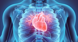 Statins May Contribute to Vascular Calcification by Inhibiting Vitamin K-Dependent Proteins